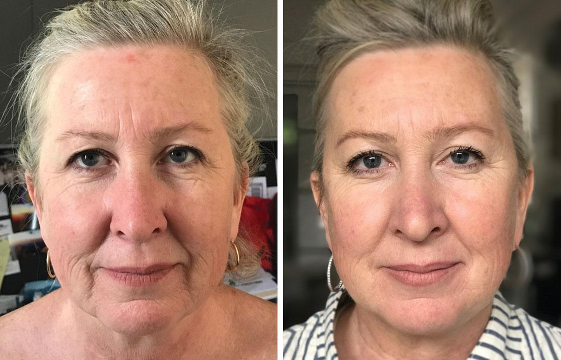 Non-sugucal Facelift - HIFU - Body Catalyst