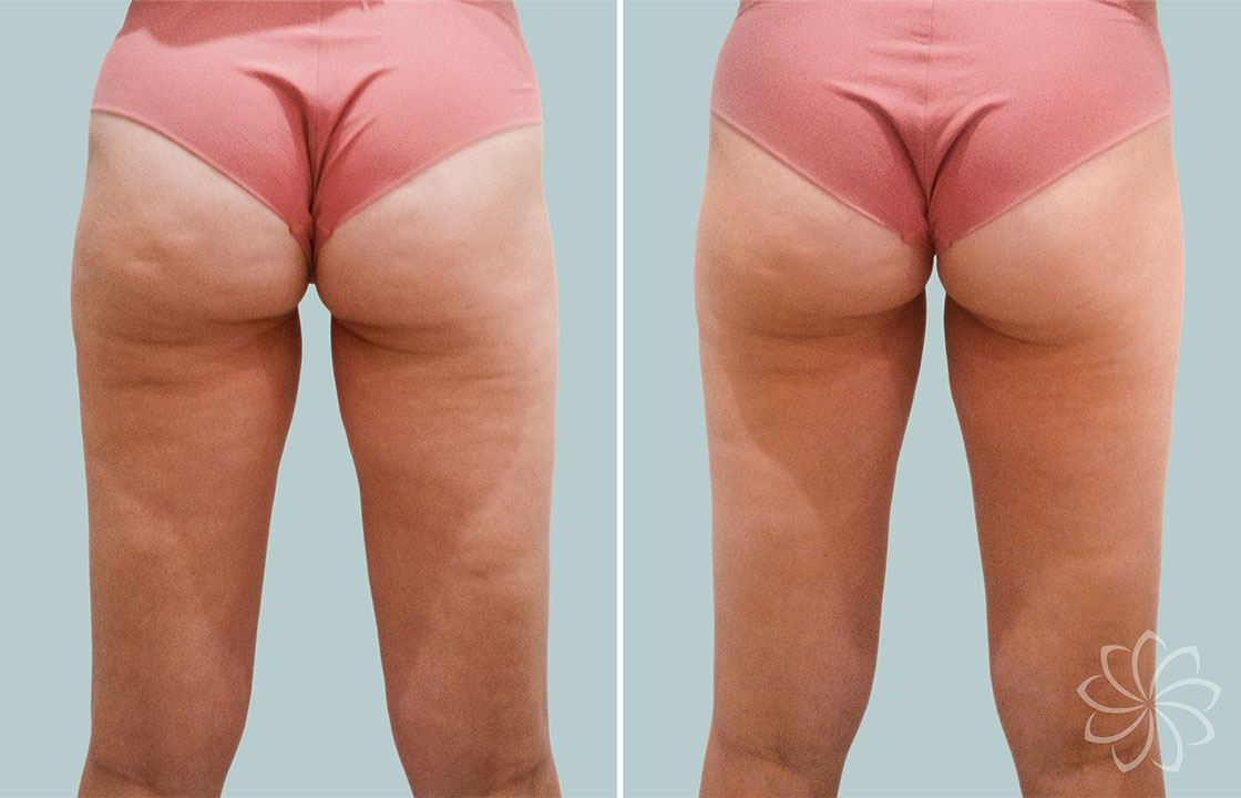cellulite treatment - Body Catalyst