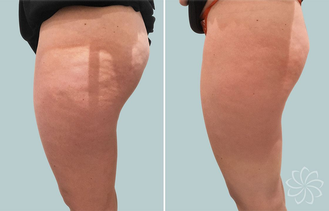 cellulite reduction - Body Catalyst