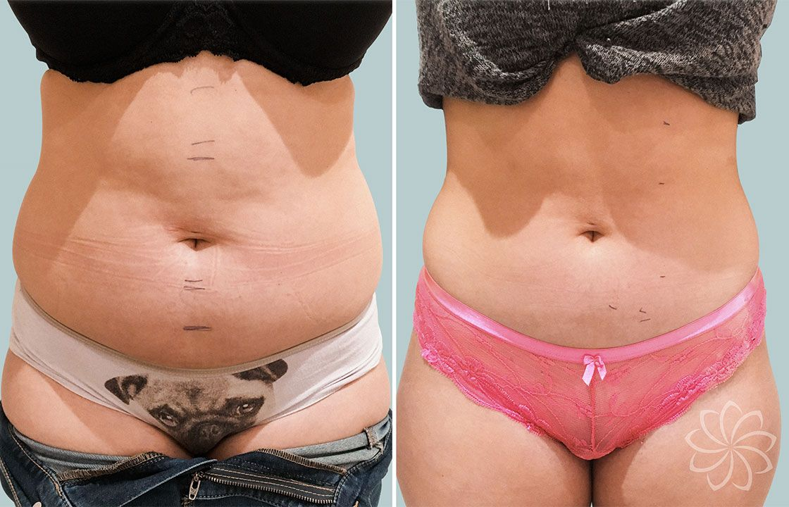 ultrasonic fat cavitation - Body Catalyst