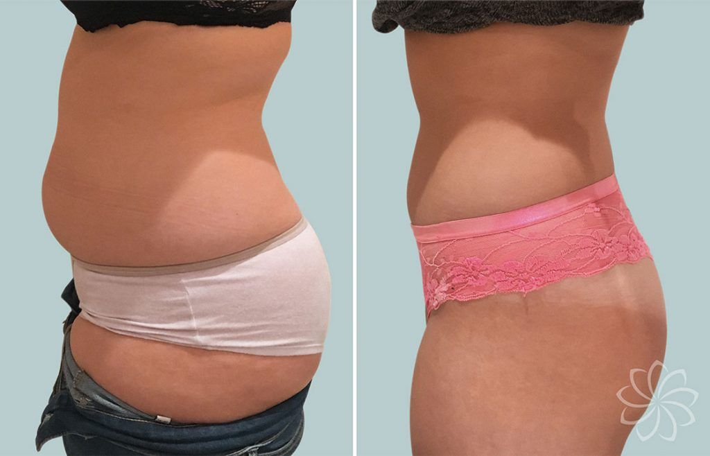 non surgical liposuction - Body Catalyst