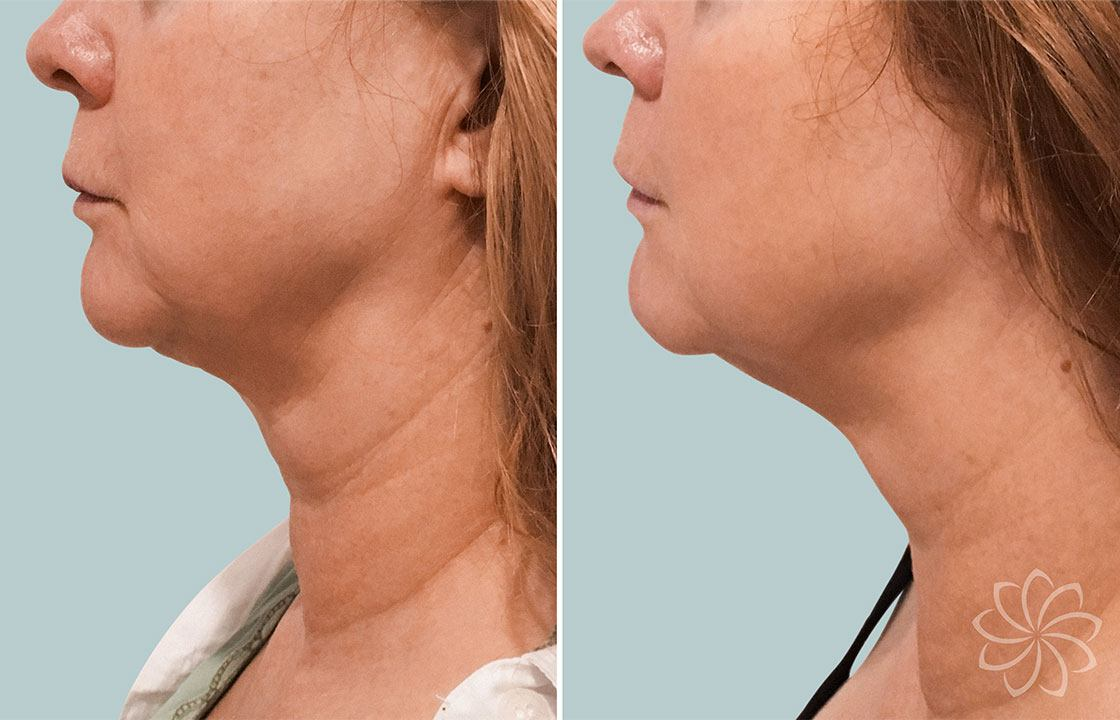 non surgical face lift - Body Catalyst