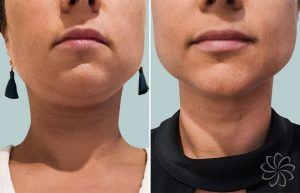 Non-surgical facelift 2 1 - Body Catalyst