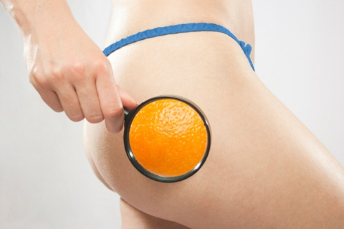 Cellulite: A bumpy ride for 90% of women