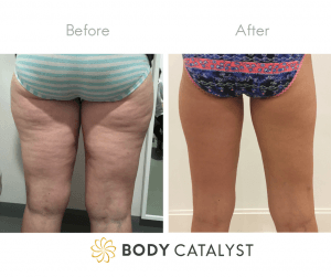 Body Catalyst non-invasive fat freezing combined with skin tightening treatments around the legs