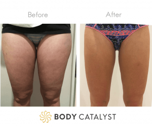Front of Legs Fat Reduction - Body Catalyst