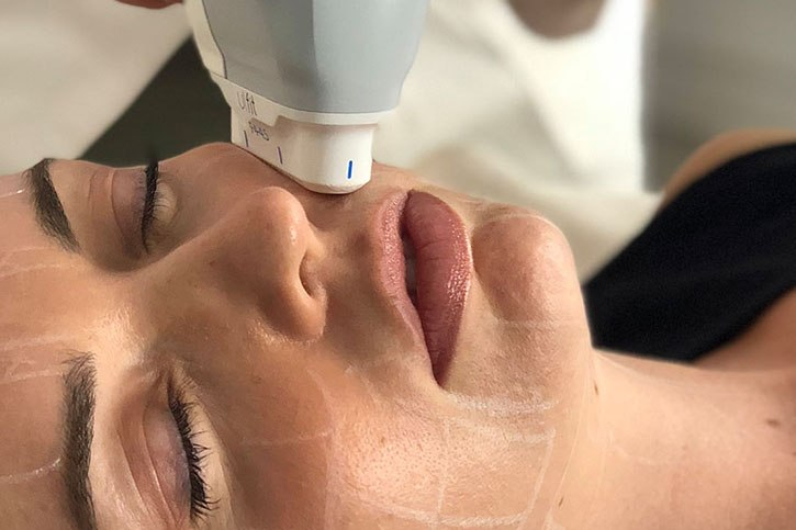 Body Catalyst introduces Non-Surgical Facelift