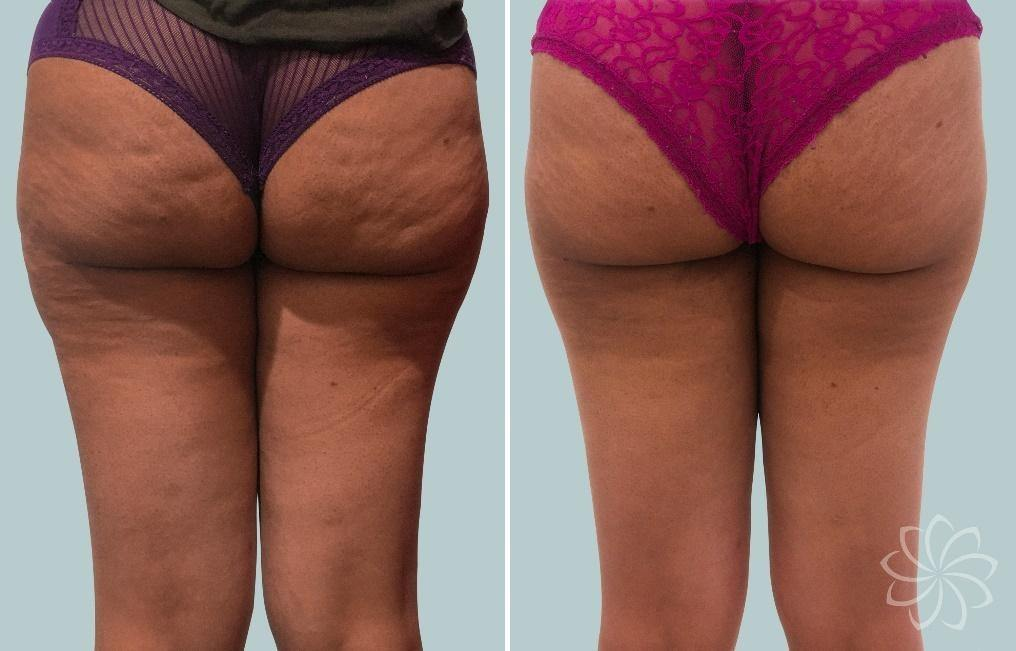 Cellulite - 2 - Body Catalyst