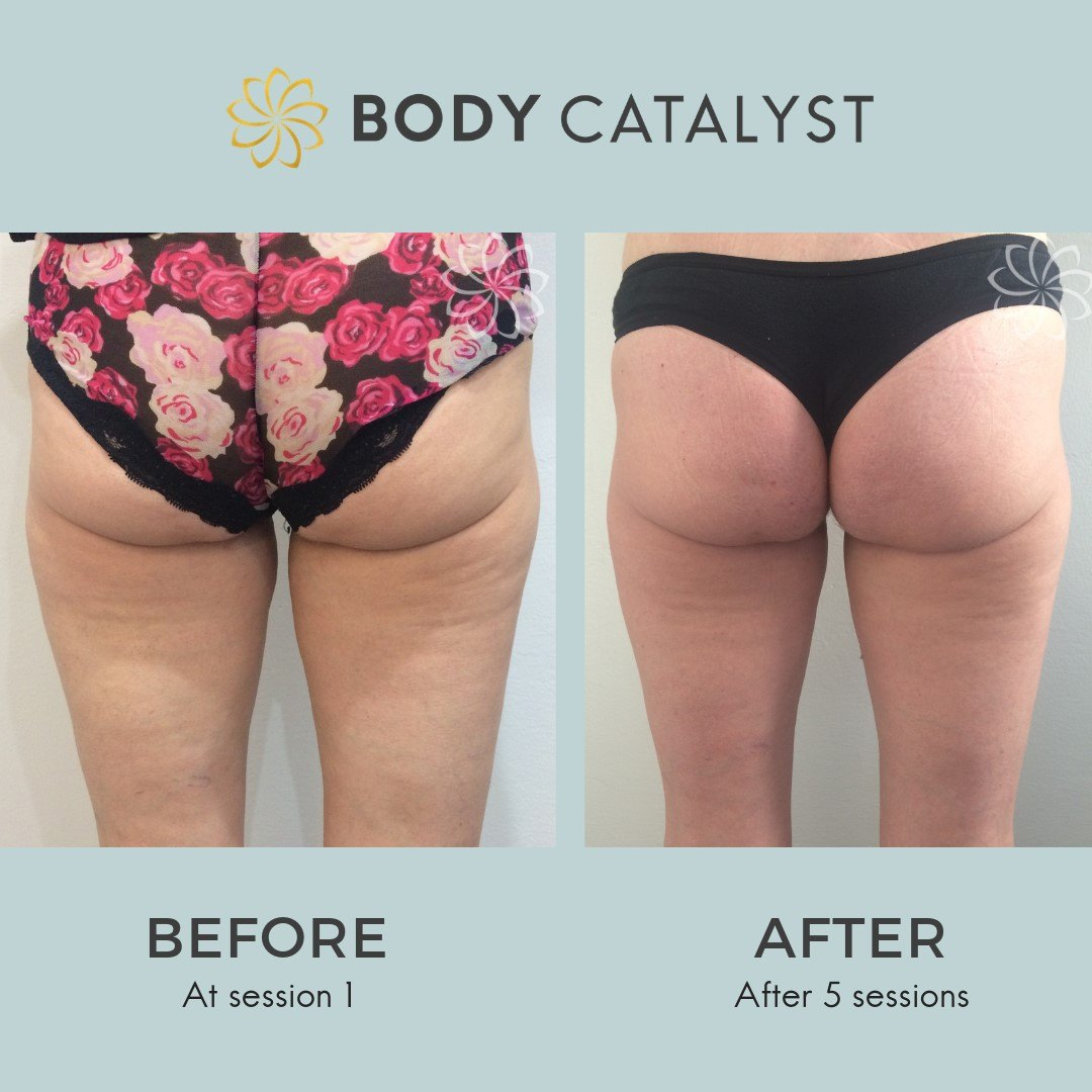 Cellulite - 5 - Body Catalyst
