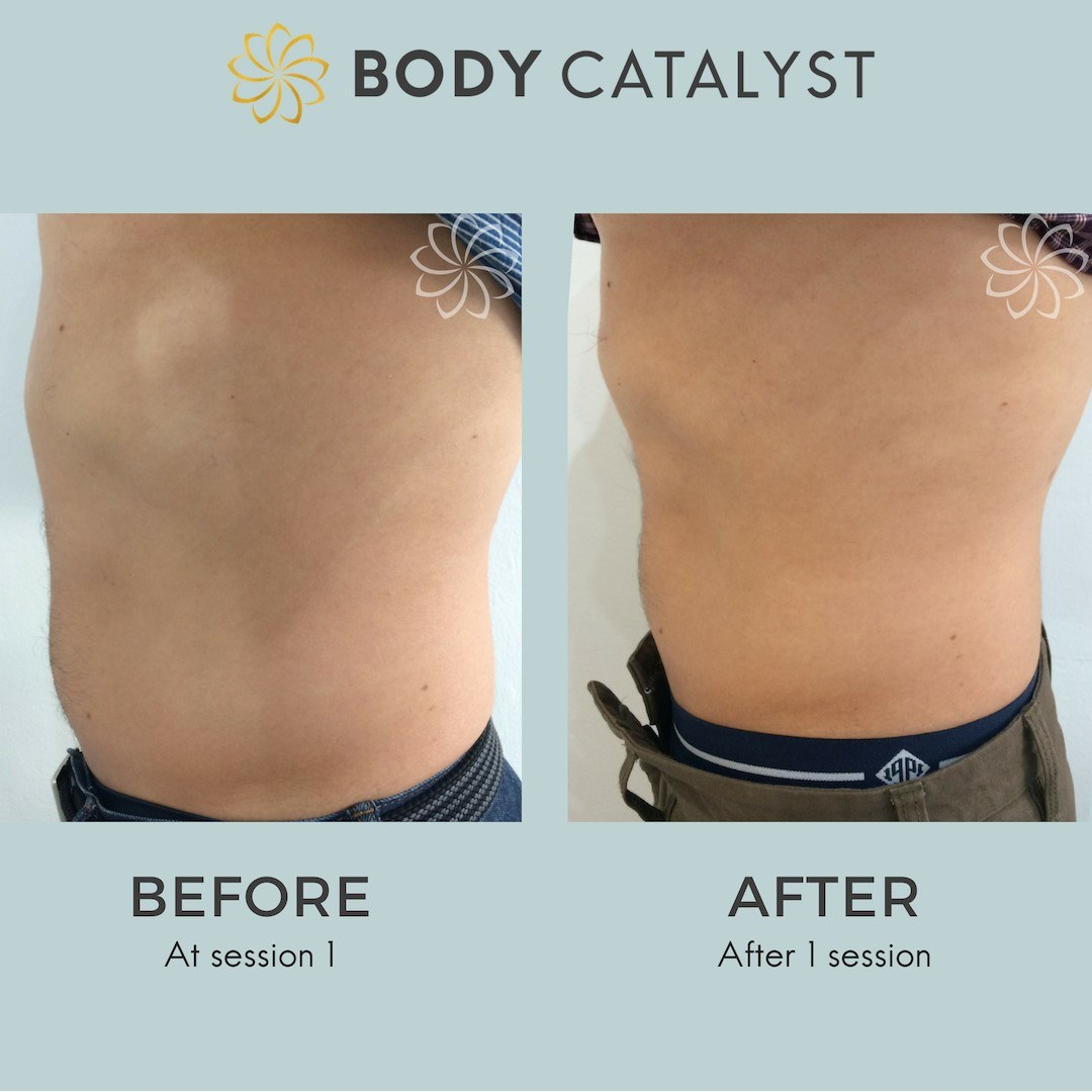 Coolsculpting - 1 - Body Catalyst