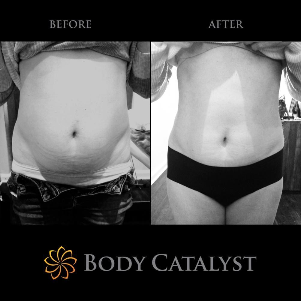 Fat Cavitation - 6 - Body Catalyst