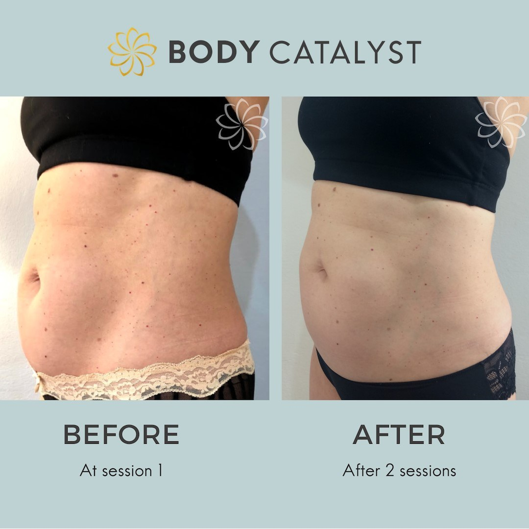 Fat Freezing - 1 - Body Catalyst