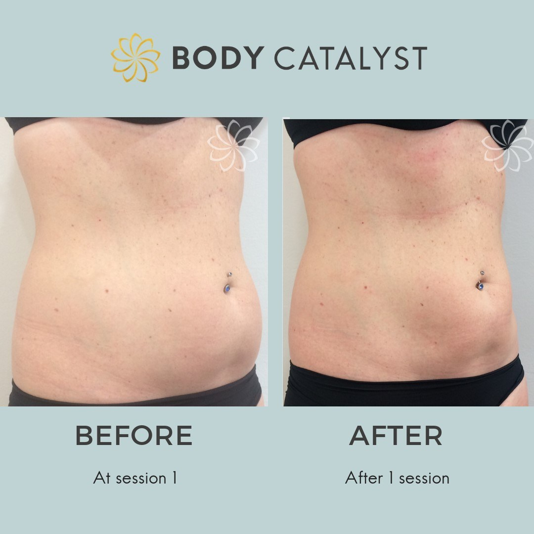 Liposuction - 1 - Body Catalyst