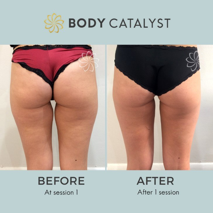 Liposuction - 2 - Body Catalyst