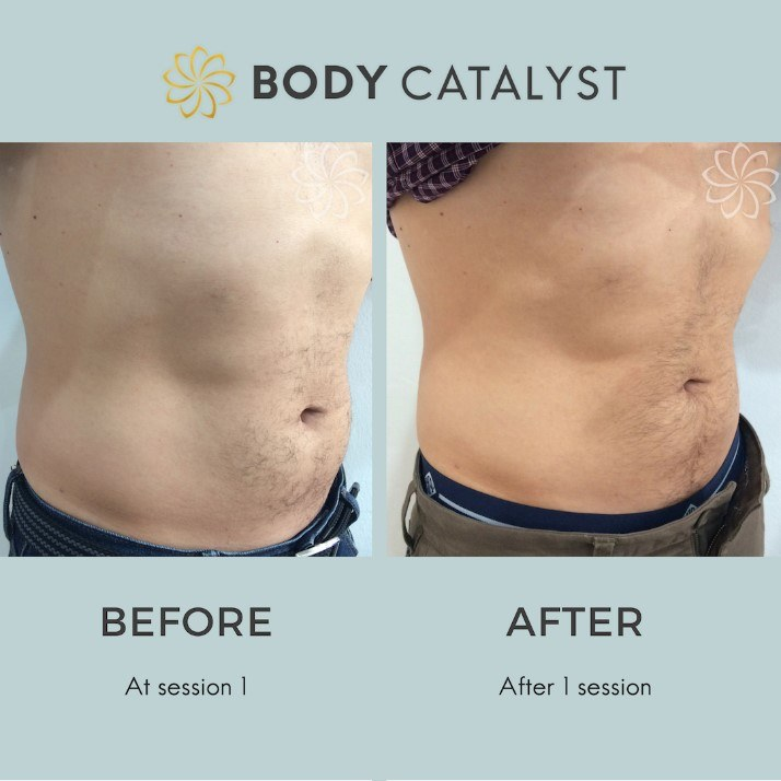 Liposuction - 3 - Body Catalyst