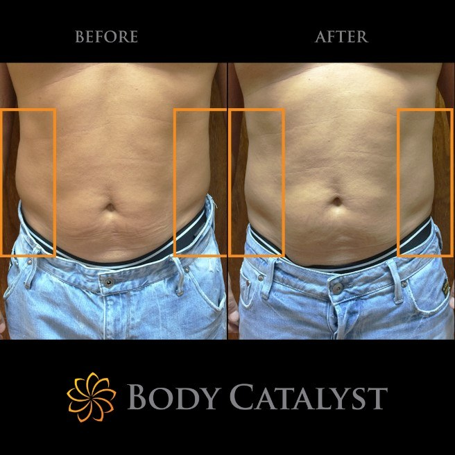 Liposuction - 4 - Body Catalyst