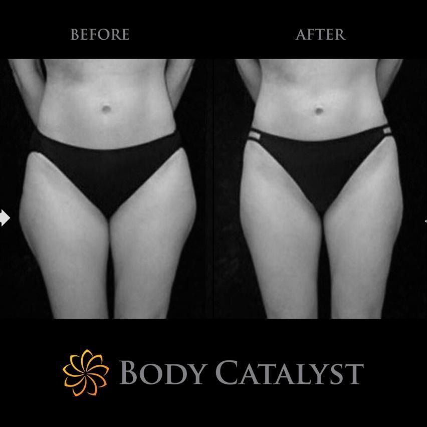 Liposuction - 5 - Body Catalyst