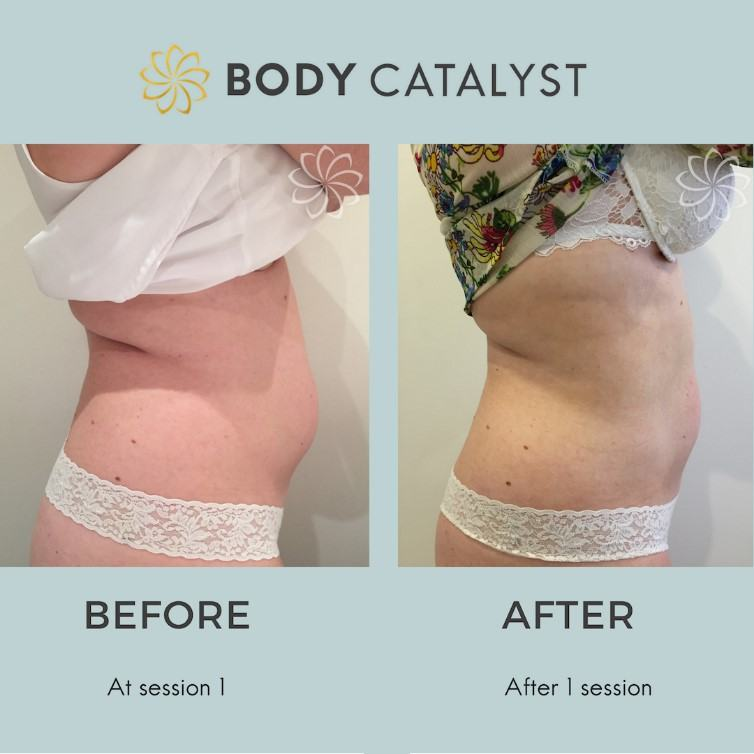 Liposuction - 6 - Body Catalyst