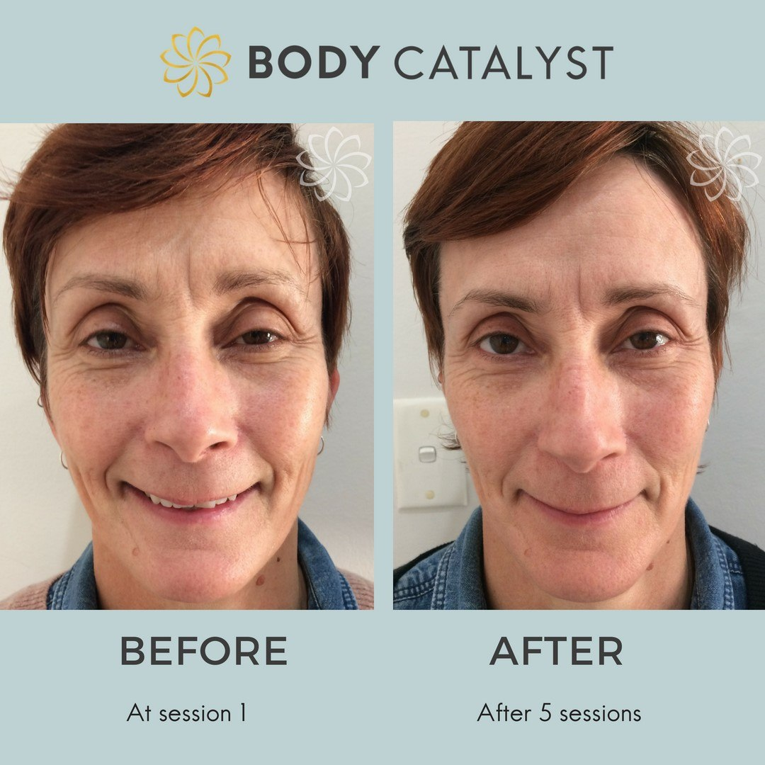 Non-Surgical Facelift - 1 - Body Catalyst