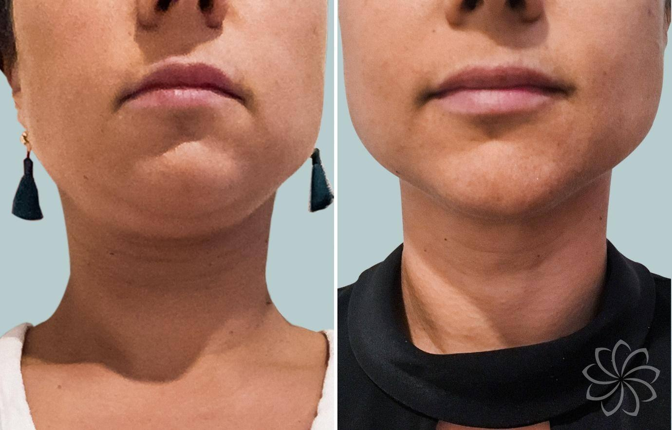 Non-Surgical Facelift - 2 - Body Catalyst