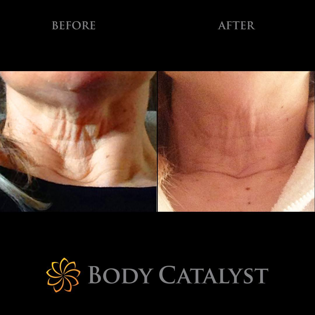 Non-Surgical Facelift - 3 - Body Catalyst