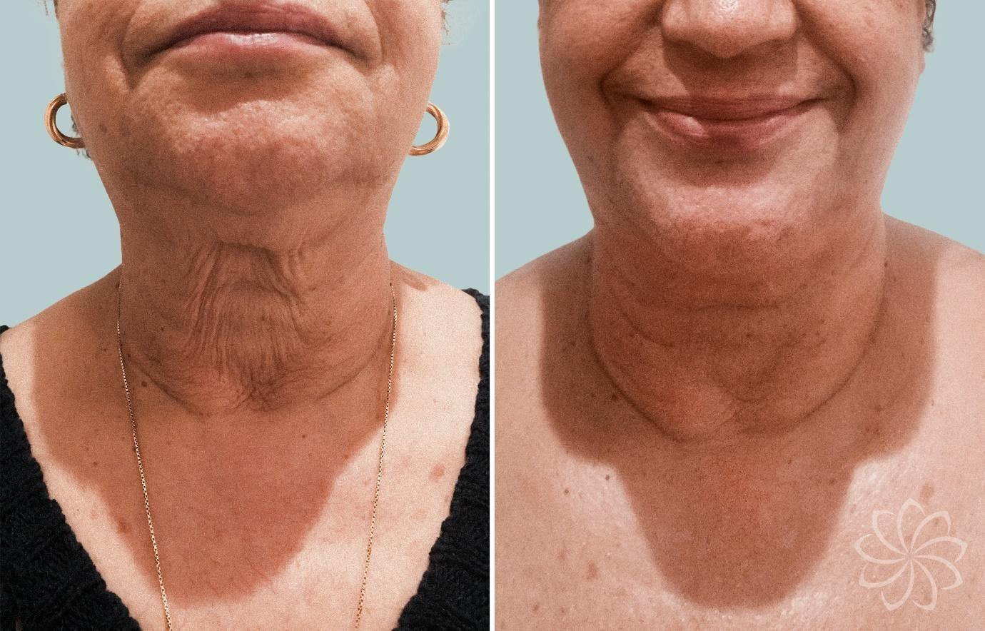 Non-Surgical Facelift - 5 - Body Catalyst