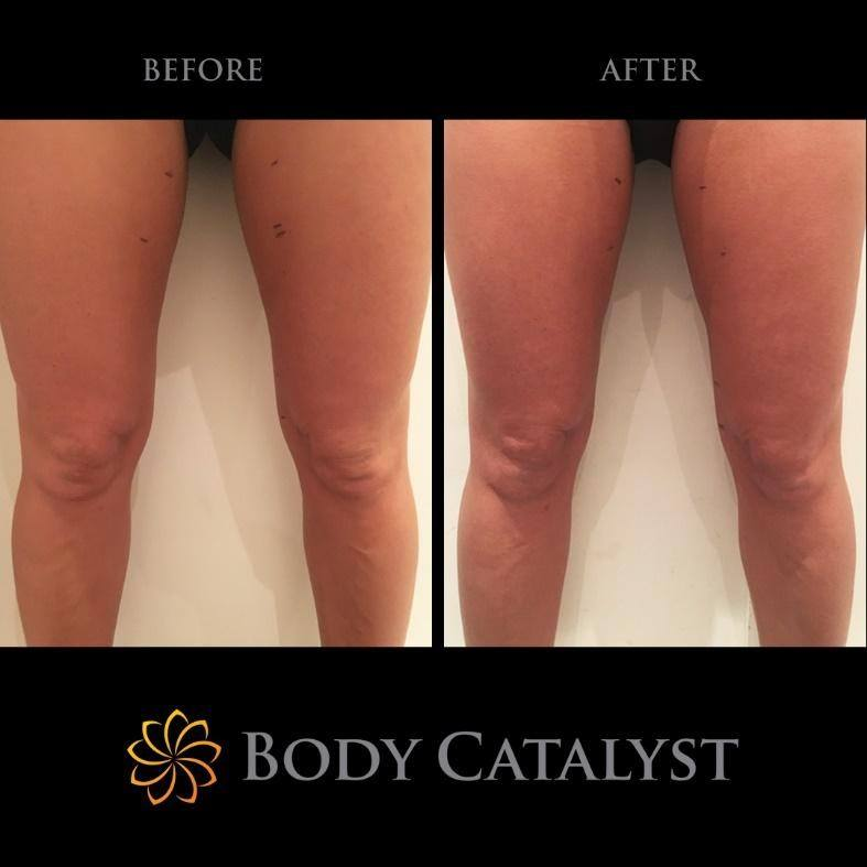 Skin Tightening - 2 - Body Catalyst