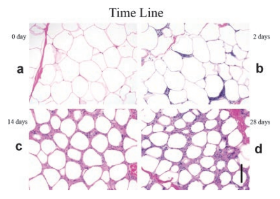 adipose tissue with one cold exposure