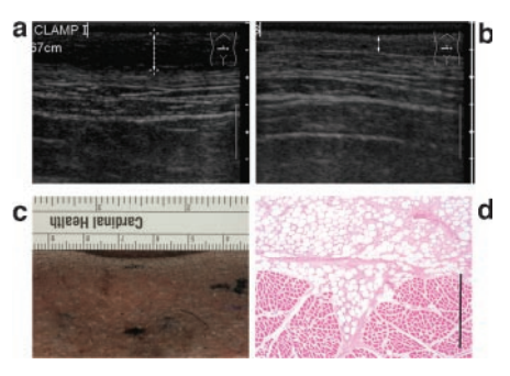 Marked fat loss of pig from dosimetry study
