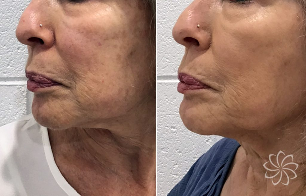 NCFT Skin rejuvenation client results