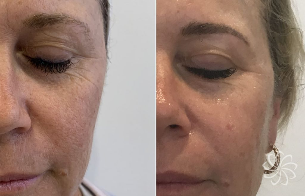 NCFT Boost skin rejuvenation before and after results