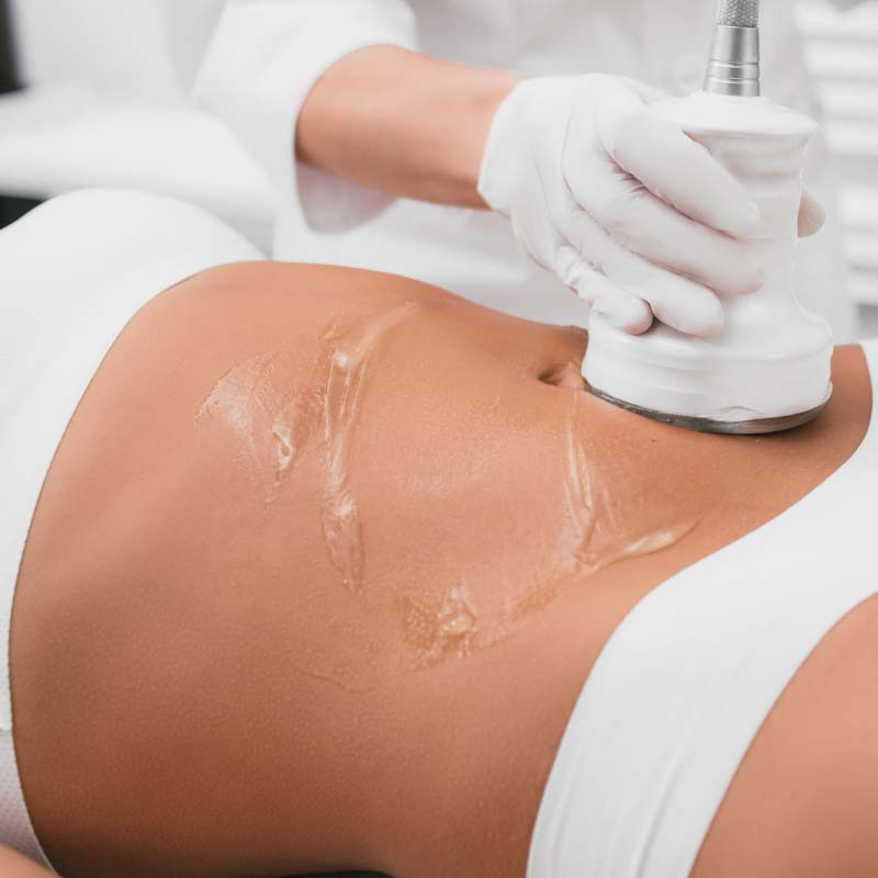 Ultrasonic Fat Cavitation is a non-surgical treatment